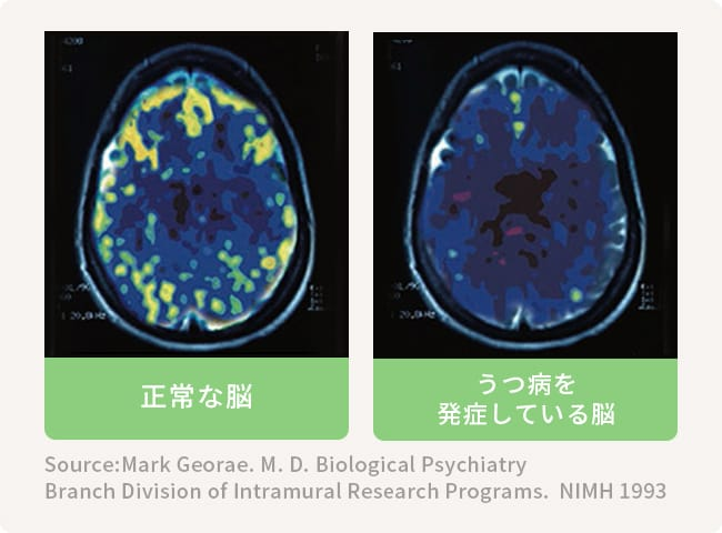正常な脳とうつ病を発症している脳 Source:Mark Georae. M. D. Biological Psychiatry Branch Division of Intramural Research Programs. NIMH 1993