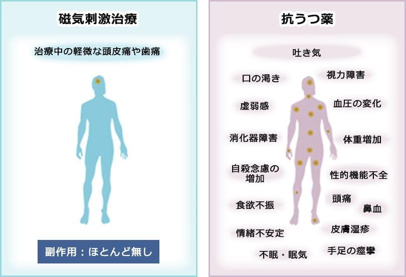 磁気刺激治療・抗うつ薬