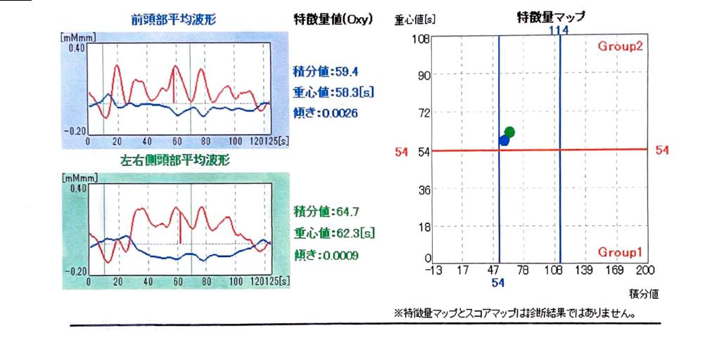 光トポグラフィー検査の精度